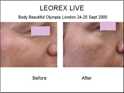 Leorex before-after